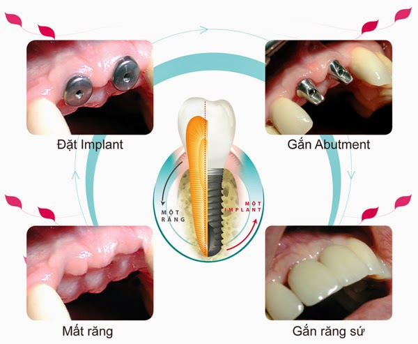 loi-ich-trong-rang-implant